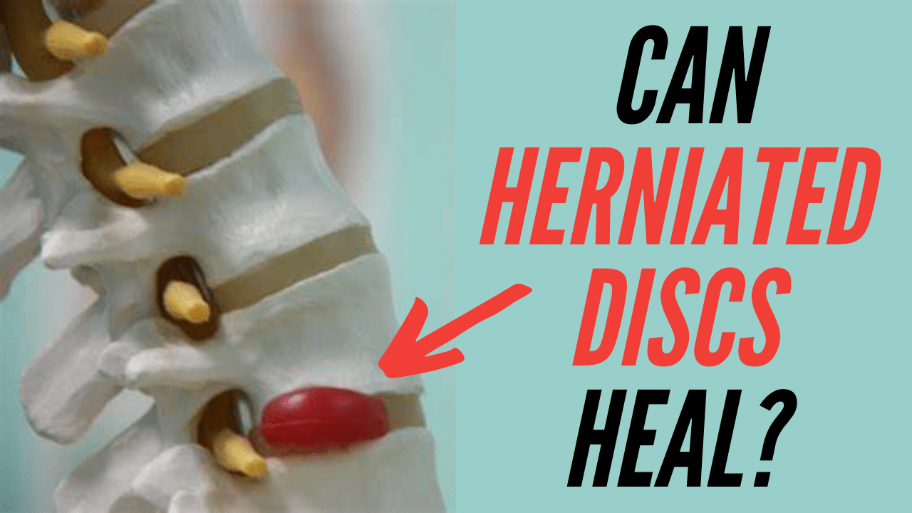 can herniated discs heal by themselves without surgery